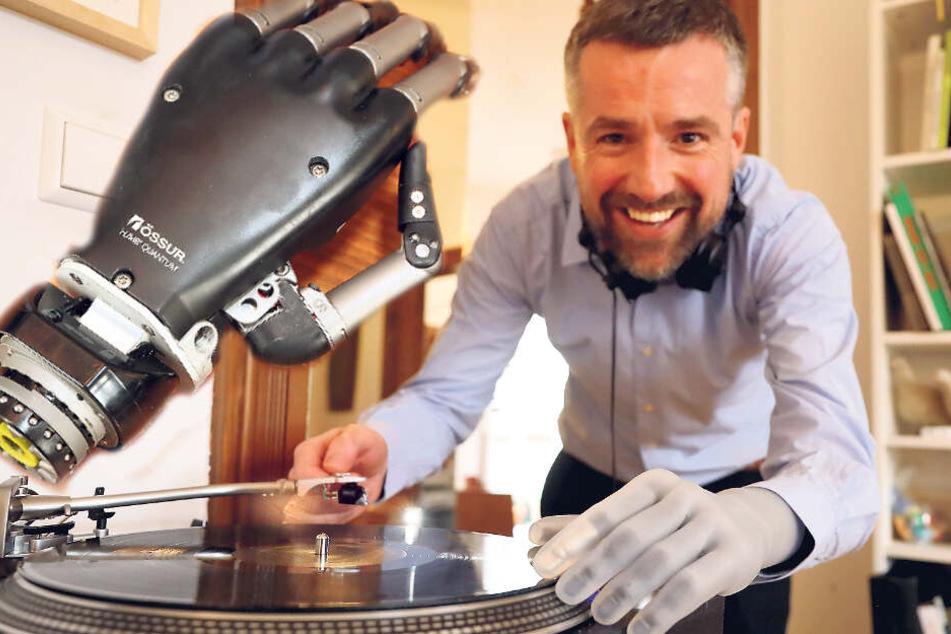 Wunderwerk hilft Professor im Alltag: Alles im Griff mit der Roboterhand