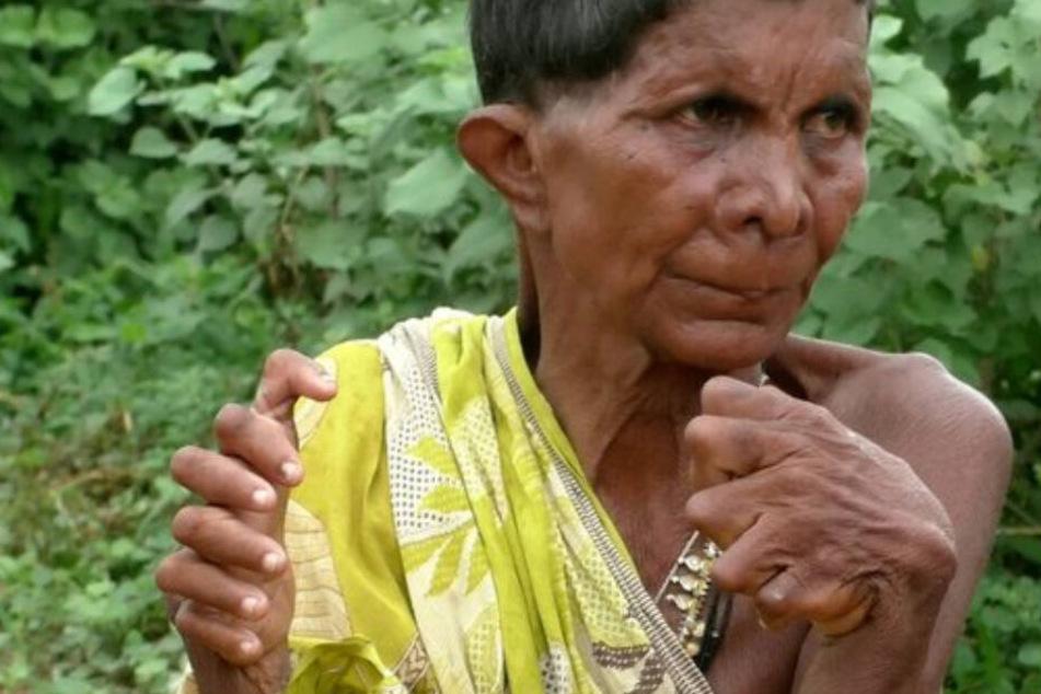 Frau hat 19 Zehen und 12 Finger, Nachbarn erschweren ihr Leben