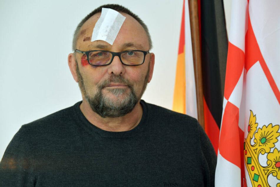 Frank Magnits zeigt sich nach der Attacke im Bremer AfD-Büro.