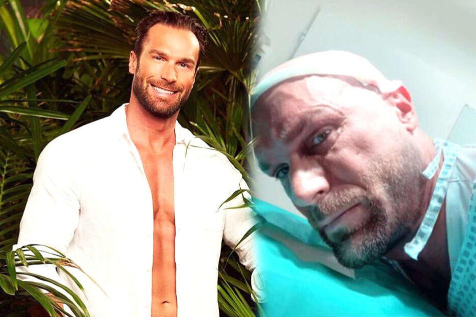 Bastian Yotta (42) als Sunnyboy wie man ihn kennt (links) und mit bandagiertem Kopf.