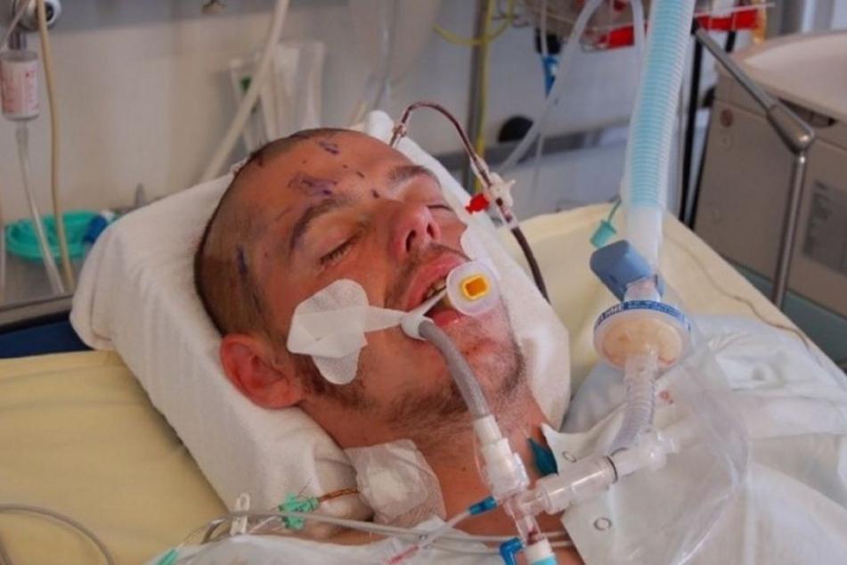 Thomas M. wurde von vier Männern zusammengeschlagen. Er liegt im Wachkoma.
