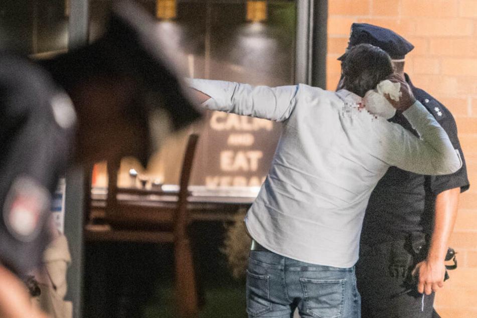 Ein Beteiligter kühlt sich seine blutende Wunde mit Eis, während er mit einem Polizisten spricht.