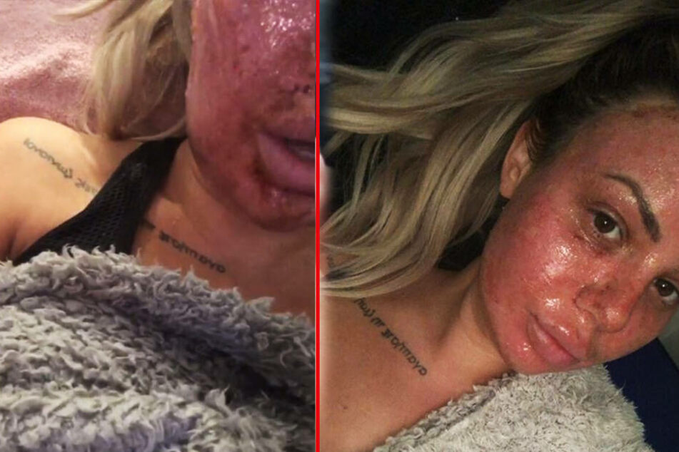 Schrecklicher Anblick! So sah Holly nach der Laser-Behandlung aus.