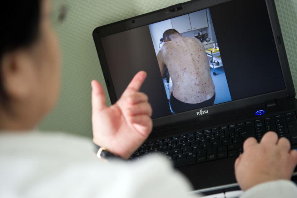 Gesundheitsamt Dresden schlägt Alarm! Zahl der Krätze-Fälle verdreifacht