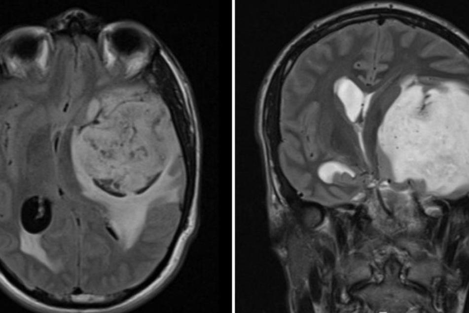 Im Mai fand man bei dem Australier einen riesigen Tumor im Kopf.