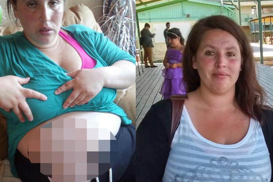 Schrecklicher OP-Fehler: Mutter hat ein Jahr lang Stuhlgang durch ihre Vagina