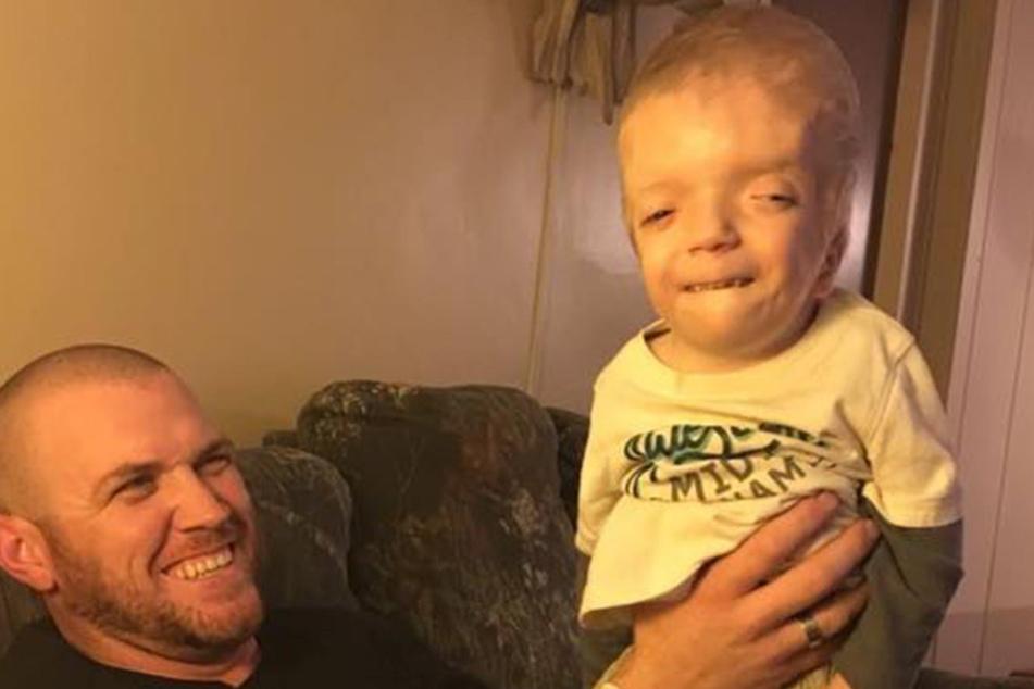 Der dreijährige Grayson hat mit einer schweren Behinderung zu kämpfen.