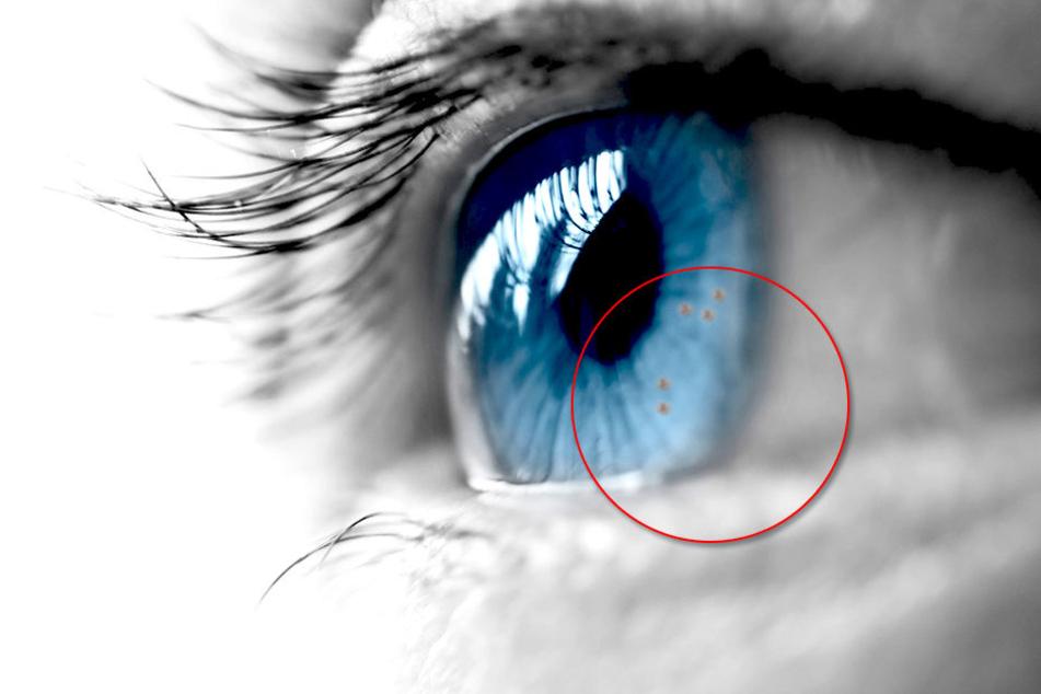 Wenn Du diese Punkte im Auge siehst, solltest Du zum Arzt
