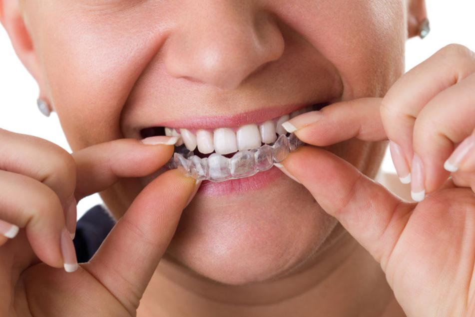 Diese Schiene macht die Zähne gerade - komplett unsichtbar!