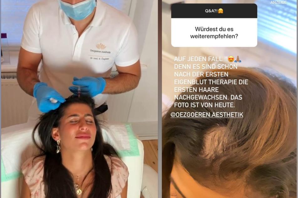 Eva Benetatou (28) unterzieht sich auf Instagram einer Eigenblut-Therapie. (Fotomontage)