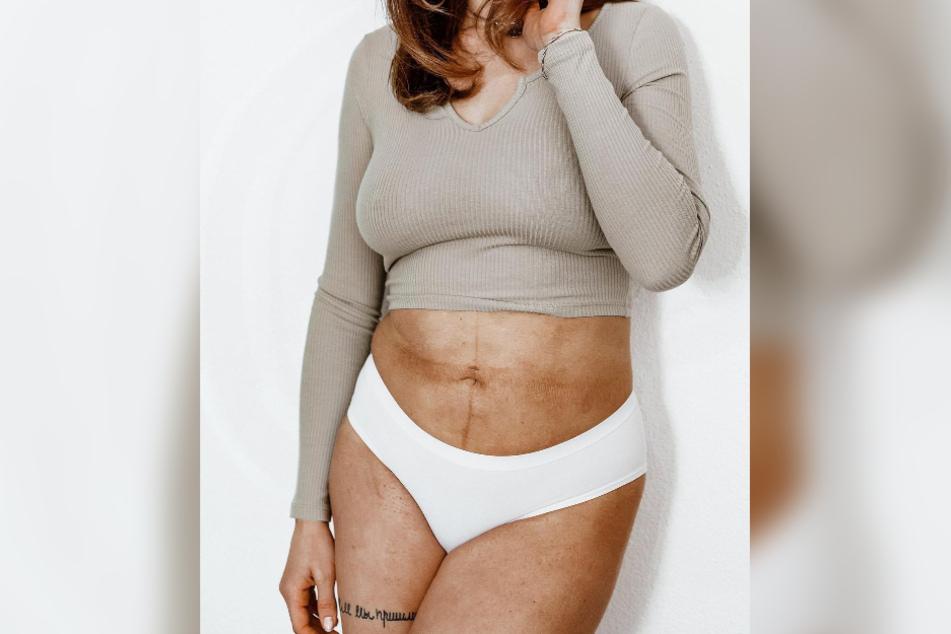 Anja Zeidler (27) zeigt, wie sich ihr Körper nach der Schwangerschaft verändert hat.