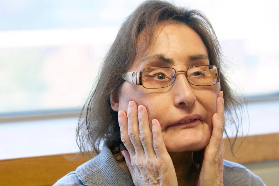 Mann schoss ihr ein Loch ins Gesicht: Frau mit erster US-Gesichtstransplantation gestorben