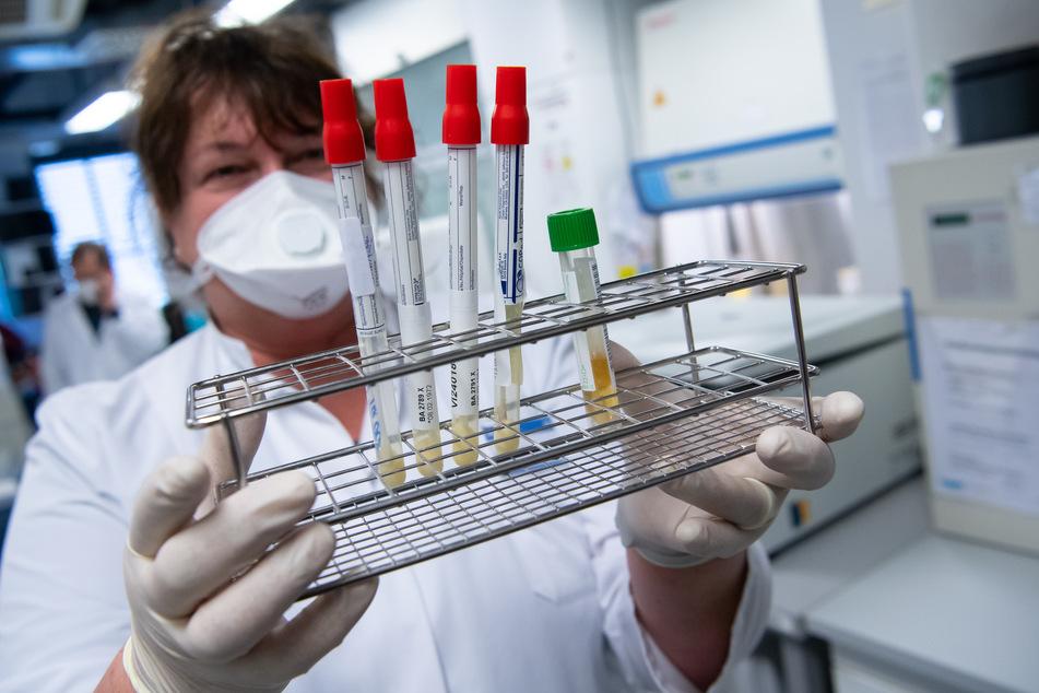 Eine Mitarbeiterin am Institut für Virologie der technischen Universität München (TUM) bereitet Proben von Menschen mit Covid-19-Verdacht in einem Labor für die weitere Analyse vor.