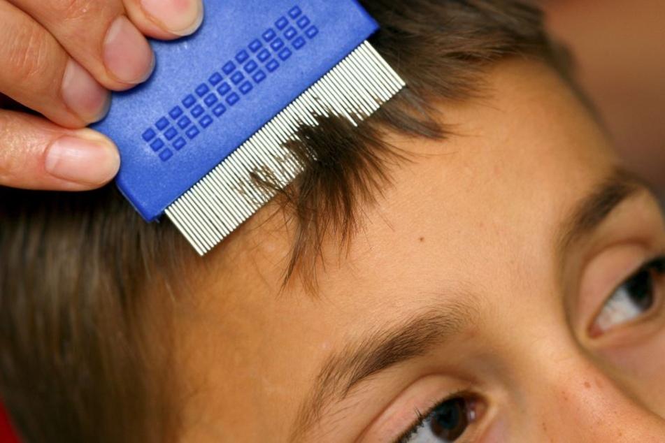 Mühsam: Die Haare mit einem Läusekamm absuchen.
