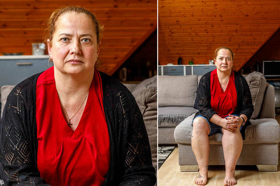 Sylvia Sonntag (43) aus Weinböhla hat Angst, ihr Bein zu verlieren. Ihre linke Wade wird seit Jahren immer dicker.
