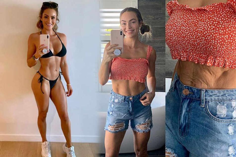 Fitness-Bloggerin postet Foto von ihrem faltigen Bauch und die Fans sind begeistert