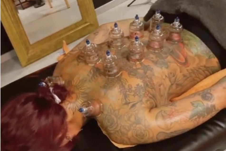Vor ihrem Unfall hat sich das Reality-TV-Sternchen noch einer Schröpf-Kur unterzogen. Dabei werden Saugglocken mittels Unterdruck auf der Haut festgesaugt.