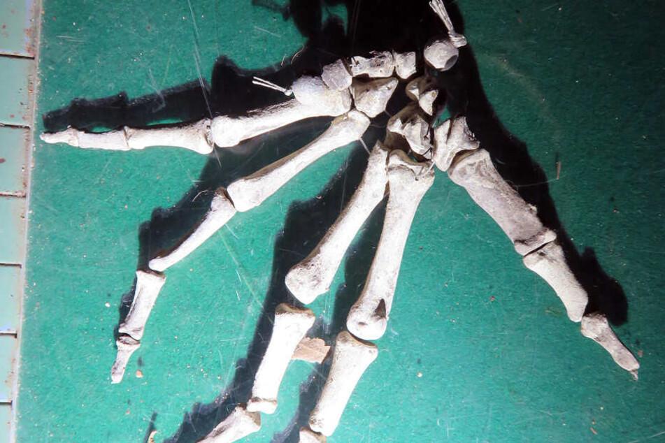Diese Hand eines Skelettmodells lag in dem Bunker.