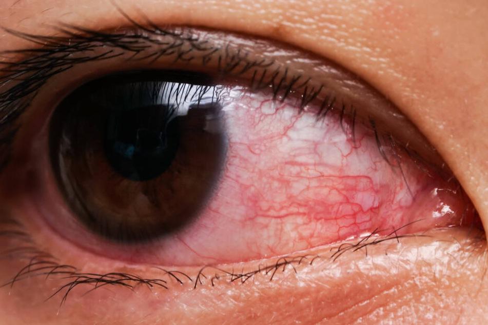 Alles begann damit, dass das Auge des Krebs-Patienten anfing zu jucken. (Symbolbild)