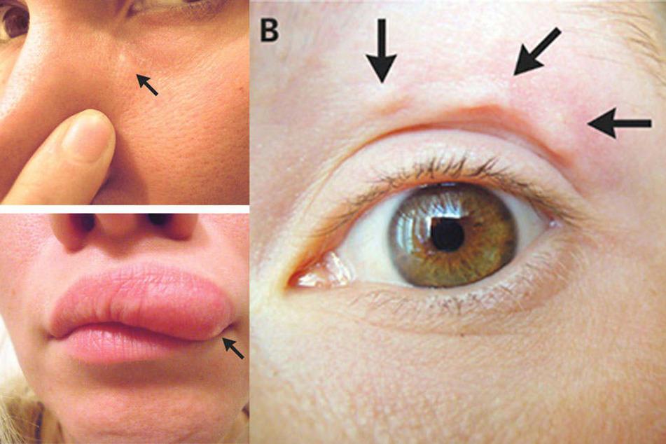 Frau entdeckt Knötchen im Gesicht: Was der Arzt feststellt, ist der absolute Horror