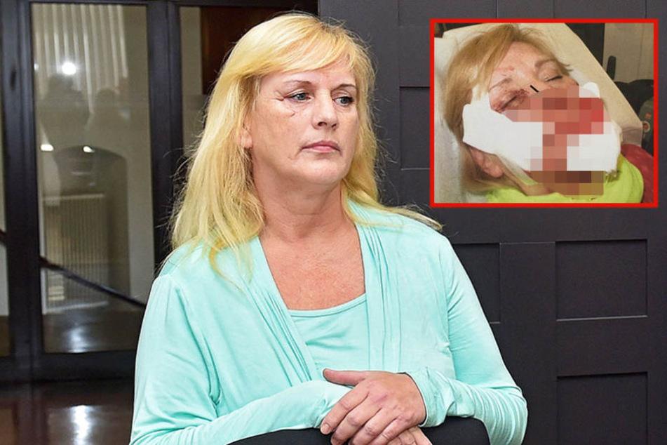 Marion Z. (56) musste für ihre Ehe mit Kamel K. (54) teuer bezahlen, trägt noch heute Narben.
