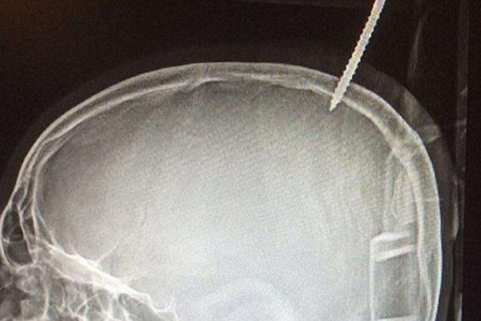 Die Schraube bohrte sich nach dem Sturz in den Schädel des 12-Jährigen.