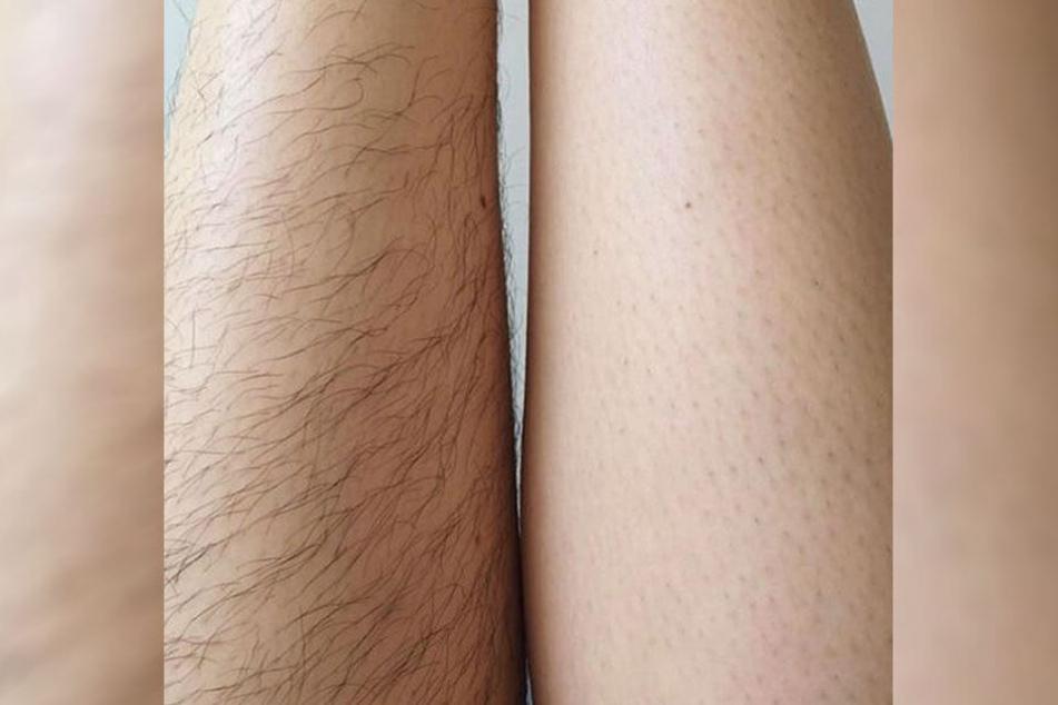 Immer mehr Frauen zeigen auf Instagram ihre Beinbehaarung.
