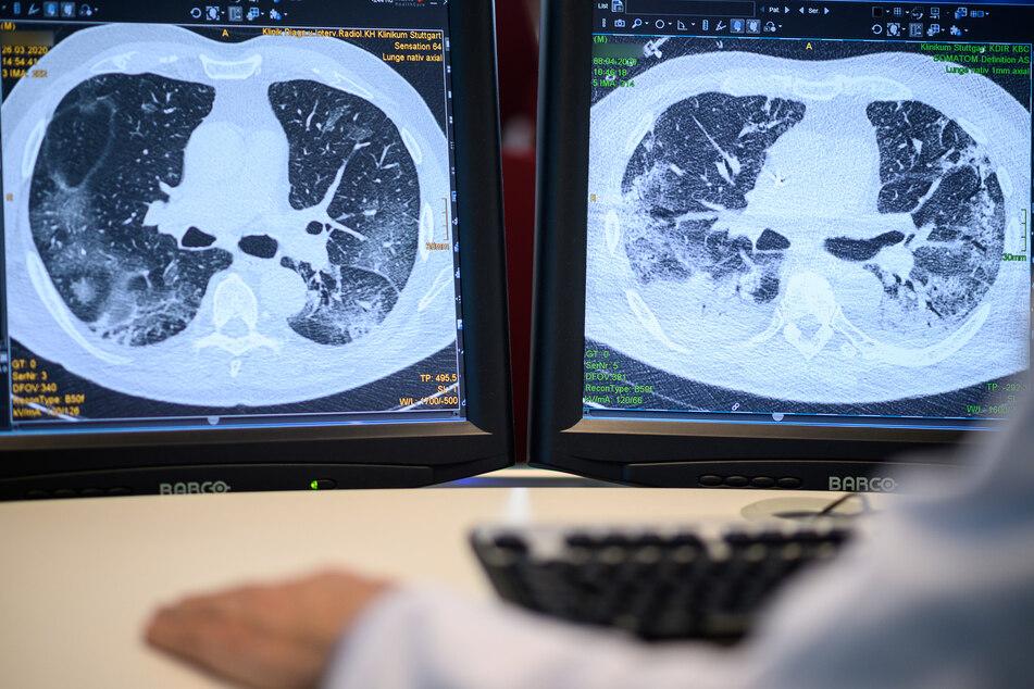 Auf zwei Monitoren sind am Klinikum Stuttgart Computertomographieaufnahmen der Lunge eines Covid19-Patienten zu sehen.