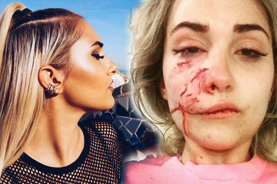 Suzel Mackintosh vor und nach der Beißattacke: Das Model erlitt auf der rechten Gesichtshälfte tiefe Wunden und operiert werden.