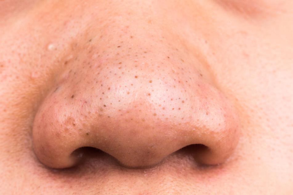 Unschön: Dunkle Mitesser auf der Nase.