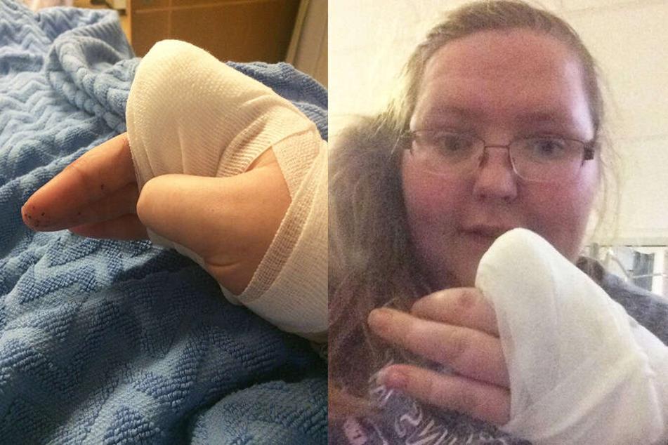 Frau schneidet sich Finger ab und schmeißt ihn in den Müll: Grund ist schmerzhaft