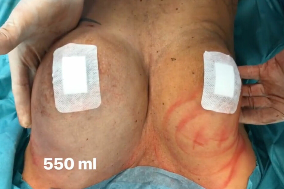 Krasser Unterschied: In die linke Brust wurden bereits 550 ml Eigenfett transferiert.