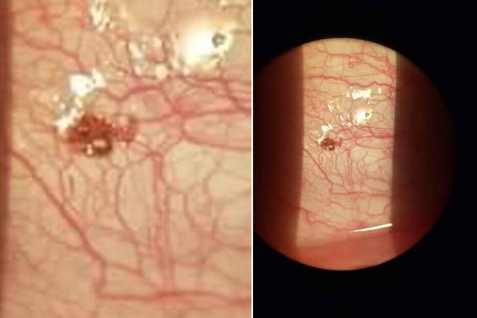 Die Zecke wurde von einem Augenarzt vorsichtig entfernt.