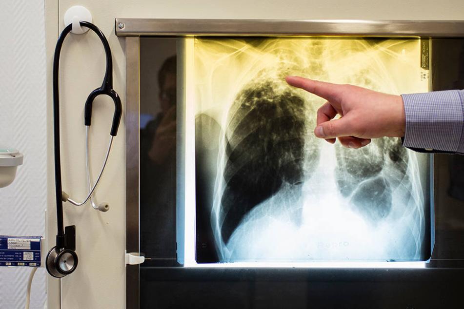 Eine Ärztin erkrankte an TBC, bei sechs anderen Mitarbeitern waren die Röntgenbefunde unauffällig, die Krankheit brach nicht aus.