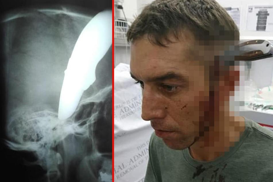 """Mann mit Messer im Kopf spaziert in Praxis: """"Haben Sie einen Arzt frei?"""""""