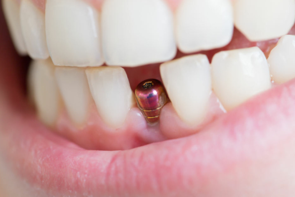 Mit dem DFV-Zahnschutz wachsen Euch die Kosten für Zahnersatz nicht mehr über den Kopf.