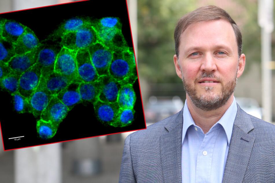 Kampf gegen den Krebs: Dresdner Forscher vor entscheidender Entdeckung?