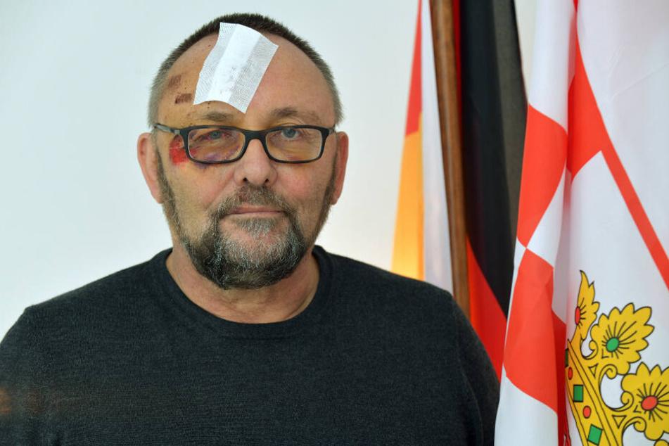 Frank Magnitz hatte wenige Tage nach dem Angriff auf ihn noch deutlich sichtbare Verletzungen im Gesicht.