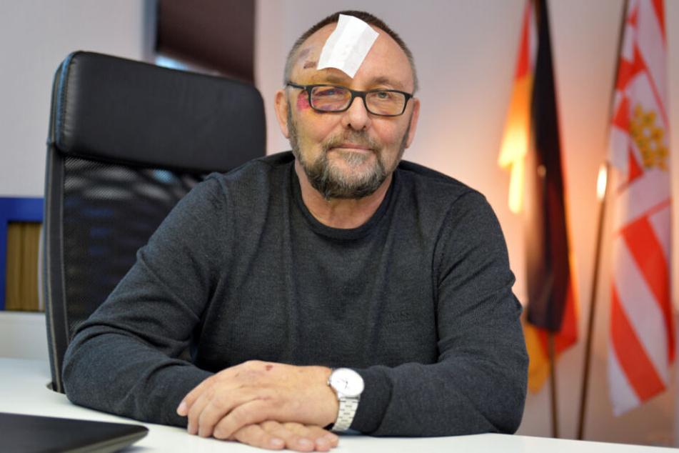 AfD-Landeschef Frank Magnitz war nach dem Überfall gezeichnet.