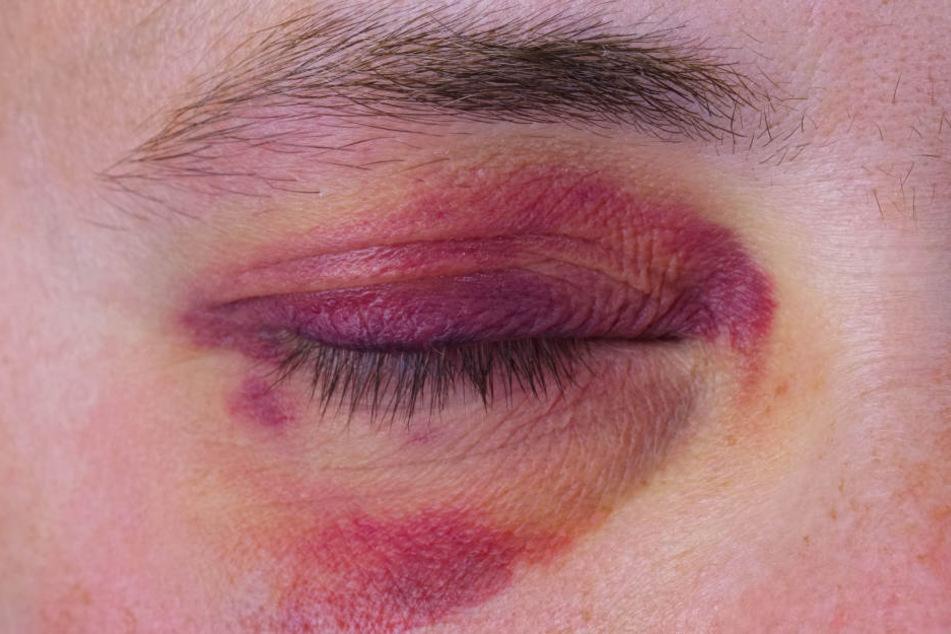 Ein Unbekannter prügelte wortlos auf die Frau ein. (Symbolbild)