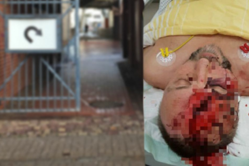 Video-Beweis: AfD-Schilderung über brutalen Magnitz-Angriff falsch
