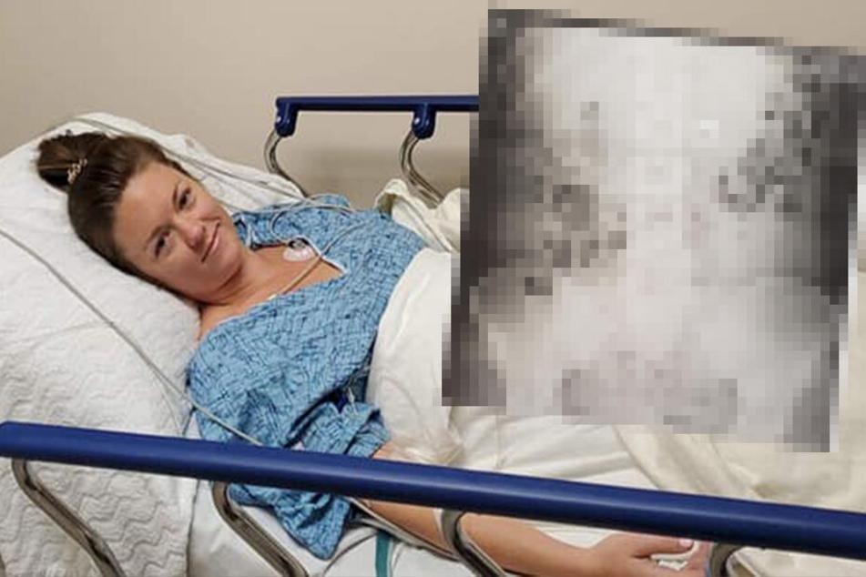 Upps: Was hat denn diese Frau während des Schlafs verschluckt?!