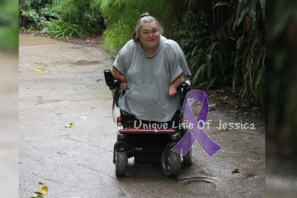 Jessica Haldin (26) verlor im Alter von zwei Jahren ihre Arme und Beine.