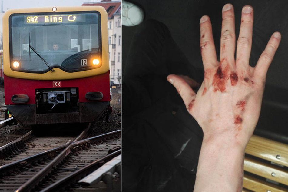 Glück im Unglück: Der junge Mann kam mit leichten Verletzungen an der Hand davon.