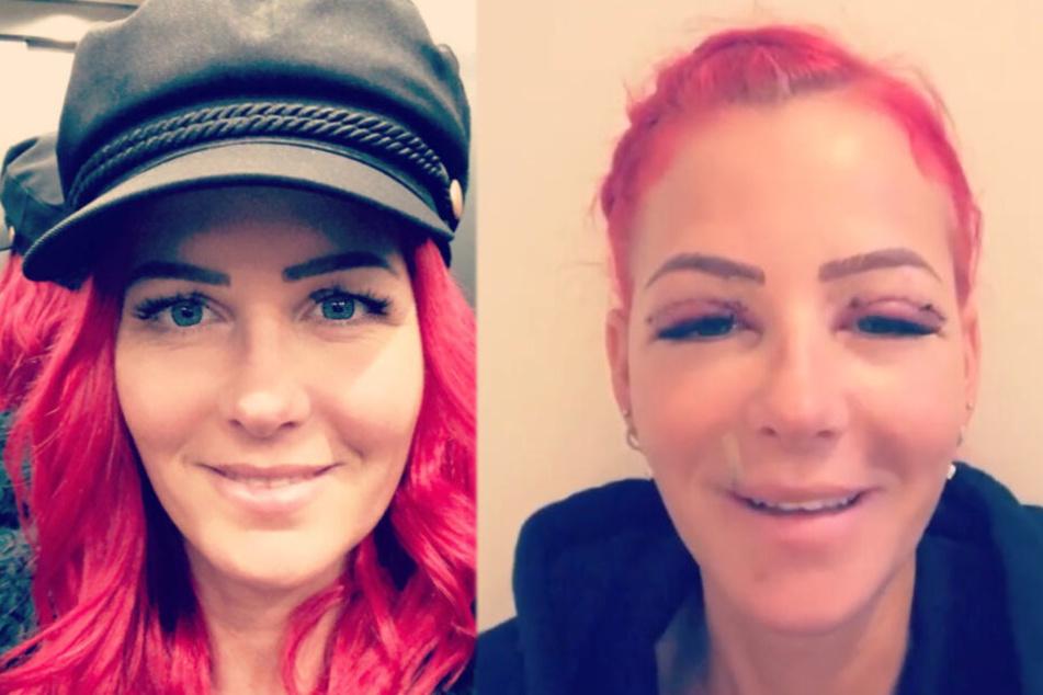 Spielerfrau schockt mit Fotos nach Schönheits-Operation