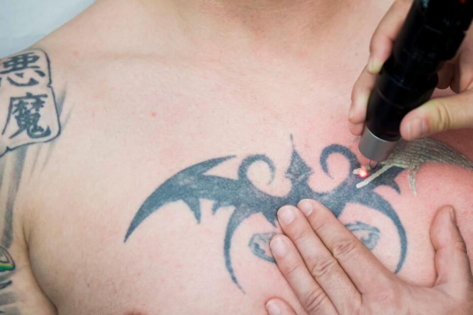 Laser-Studios vor dem Aus? Bald dürfen nur noch Ärzte Tattoos entfernen!