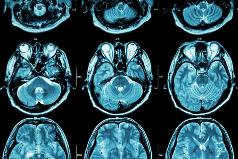 Ob Übergewicht Auswirkungen auf das Gehirn hat, ist bisher noch unklar.