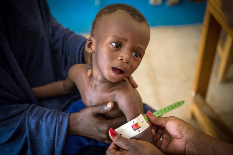 Der 16 Monate alte Okachatata Ichaka aus Mali ist schwer unterernährt.