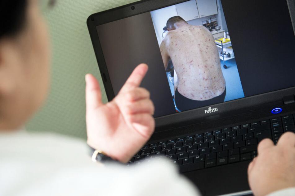 Krätze-Fälle mehr als verdoppelt: Krankheit auf dem Vormarsch?