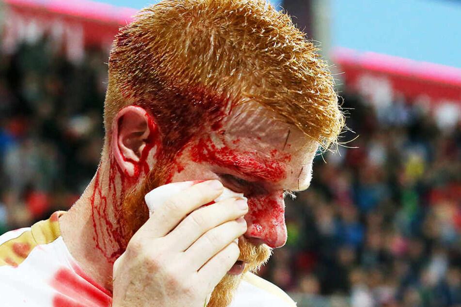 Fabian Kalig mit seinem blutverschmierten Gesicht beim Spiel in Ingolstadt. Der Cut wurde mit mehreren Stichen genäht.